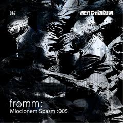 Mioclonem Spasm: 005 - Fromm